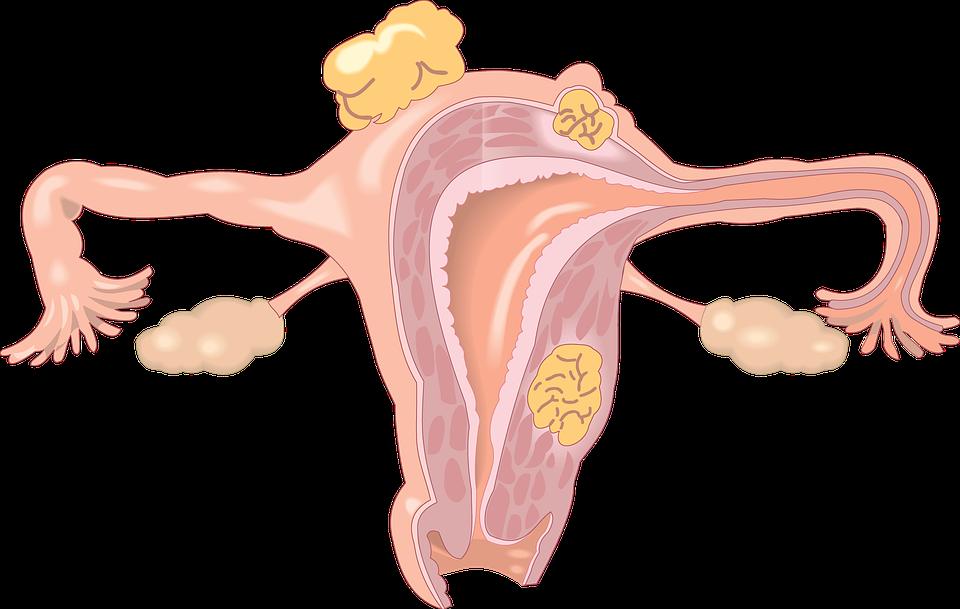 cancer, ovarios,neoplasia, enfermedad, dolor, neo, cáncer